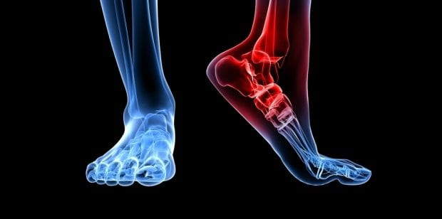 Nerve Injury Can Develop Before Diabetes - El Paso Chiropractor