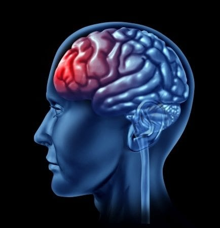 blog illustration of profile of human brain and the frontal lobe in red