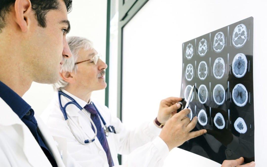 Silent Seizures Associated with Alzheimer's Disease