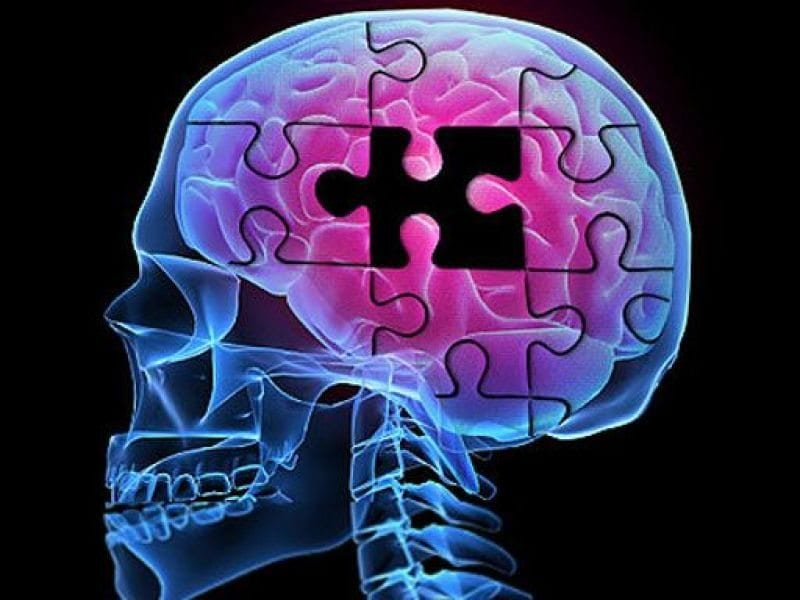 Tests Should Be Required Before Using Alzheimer's Drugs