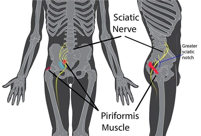 Piriformis_syndrome_01