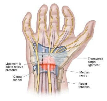 Carpal Tunnel Syndrome | El Paso, TX Chiropractor