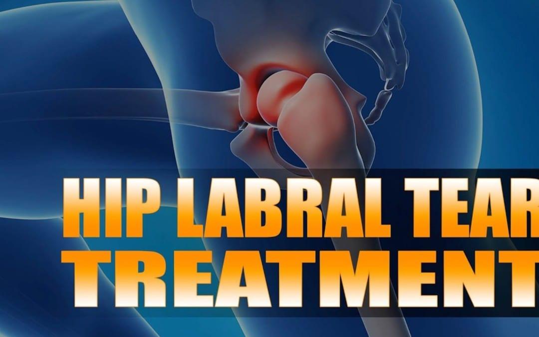 Hip Labral Tear Treatment | El Paso, TX. | Video