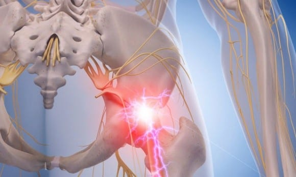 Understanding the Facts About Sciatica | El Paso, TX Chiropractor