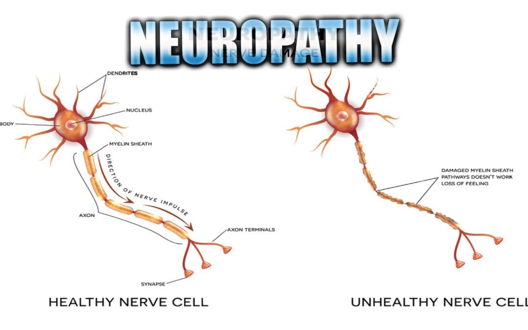 Neuropathy Presentation | El Paso, TX. | Part I