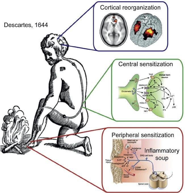 Cortical Reorganization   El Paso, TX Chiropractor
