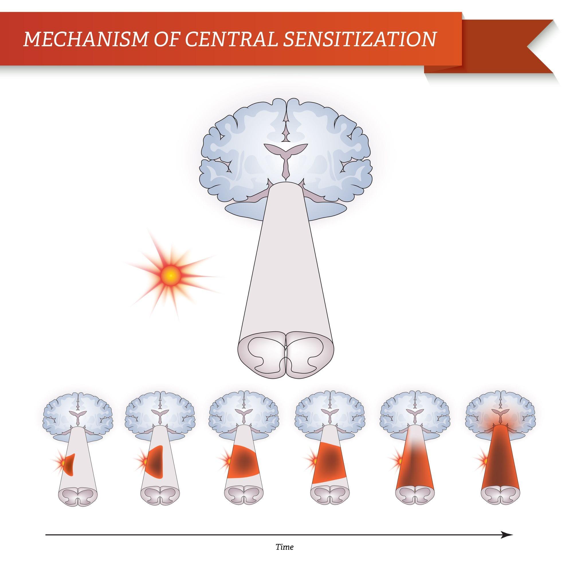 Mechanism of Central Sensitization   El Paso, TX Chiropractor