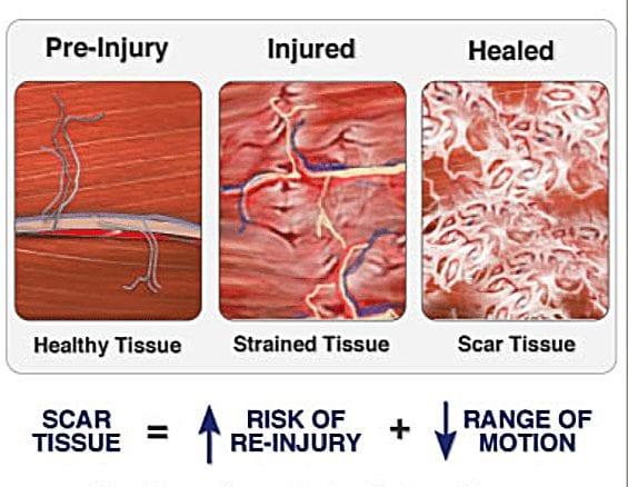 Scar Tissue Diagram 1   El Paso, TX Chiropractor
