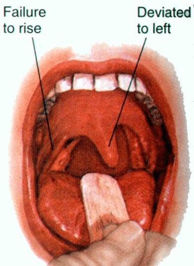 Testing Cranial Nerve IX and X   El Paso, TX Chiropractor