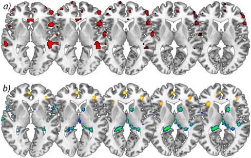 Figure 2 Increases in Brain Gray Matter