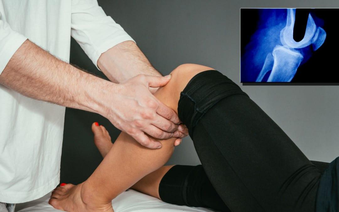 Knee Pain & Acute Trauma Diagnosis Imaging Part II | El Paso, TX