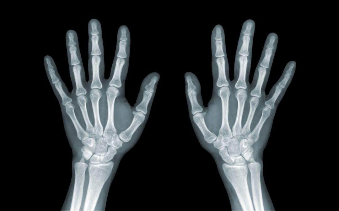 Wrist/Hand Arthritis And Trauma: Diagnostic Imaging | El Paso, TX.
