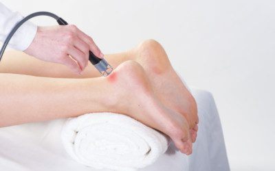 The Effects of Low Laser Therapy on Repairing The Calcaneal Tendon | El Paso, TX